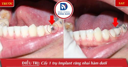 cấy 1 trụ implant răng hàm dưới