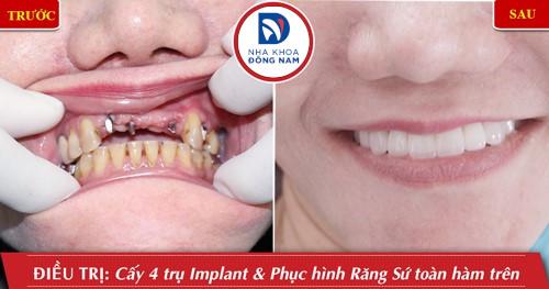 trồng 4 trụ implant răng hàm trên