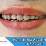 Răng bị nhiễm kháng sinh, nhiễm màu thì nên làm gì?