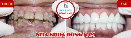 bọc sứ 2 hàm răng nhiễm kháng sinh