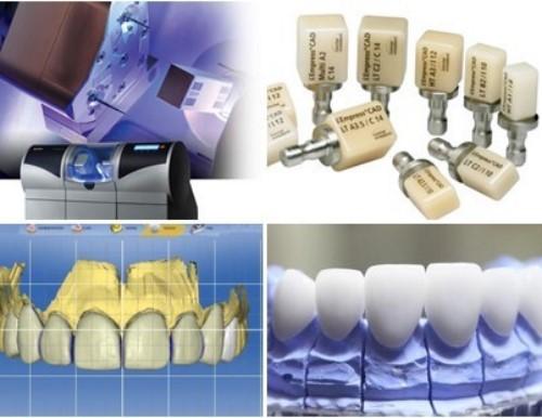công nghệ chế tác răng sứ CAD/CAM