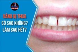 Răng bị thưa có sao không? Làm sao hết?
