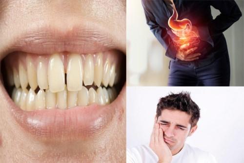 tác hại của răng bị thưa