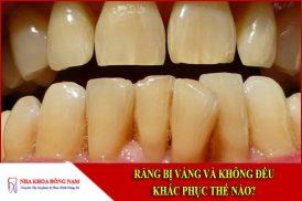 Răng bị vàng và không đều khắc phục thế nào?