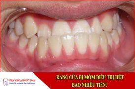 Răng cửa bị móm điều trị hết bao nhiêu tiền?
