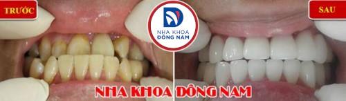 bọc sứ cho răng móm