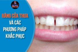 Răng Cửa Thưa và các phương pháp khắc phục