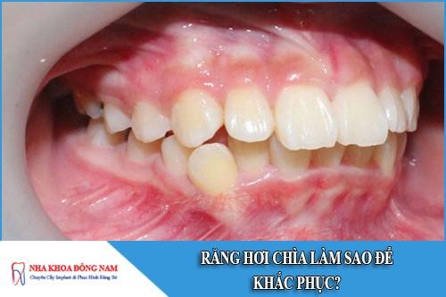 Răng hơi chìa làm sao để khắc phục?Răng hơi chìa làm sao để khắc phục?