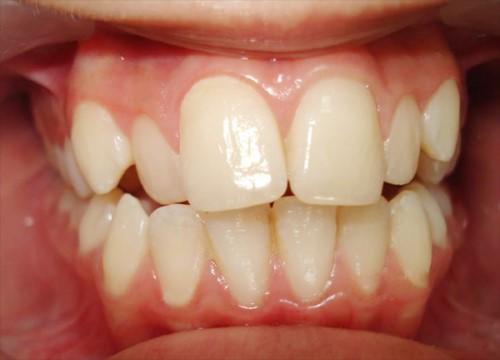 răng mọc chìa
