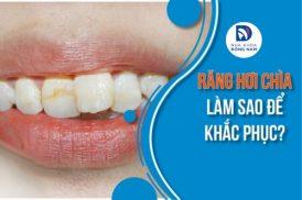 Răng hơi chìa làm sao để khắc phục?