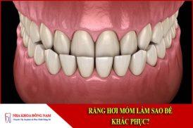 Răng hơi móm làm sao để khắc phục?