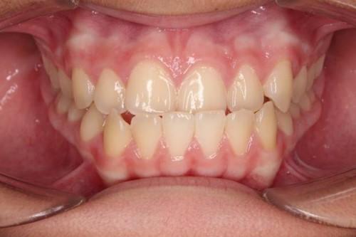 răng bị móm nhẹ
