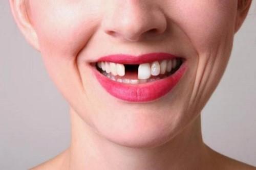 mất răng ảnh hưởng đến thẩm mỹ