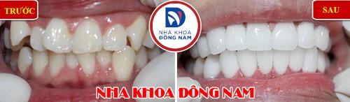 bọc sứ cho răng mọc lệch