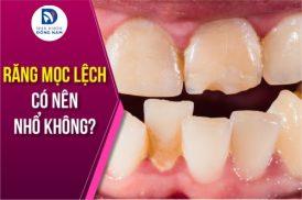Răng mọc lệch có nên nhổ không?