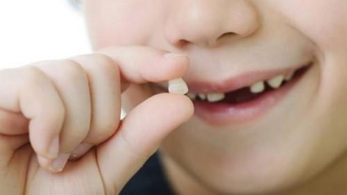 không nên tự nhổ răng sữa