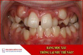 Răng mọc xấu trồng lại như thế nào?