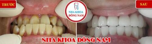 bọc sứ cho răng bị móm