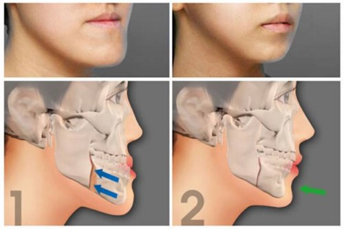 phẫu thuật chỉnh răng móm