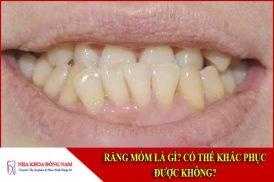 Răng móm là gì? Có thể khắc phục được không?