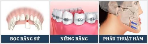 phương pháp khắc phục răng móm