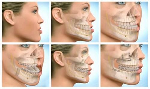 điều trị răng móm