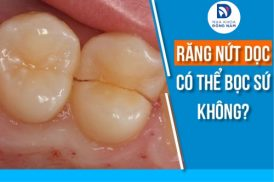 Răng nứt dọc có thể bọc sứ không?