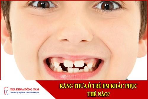 Răng thưa ở trẻ em khắc phục thế nào?