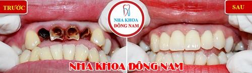 bọc sứ cho răng cửa hư tổn nặng