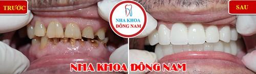 bọc sứ cho răng bị ố vàng