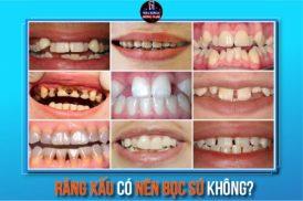 răng xấu có nên bọc sứ không