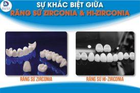 So sánh răng sứ Zirconia và Hi-Zirconia