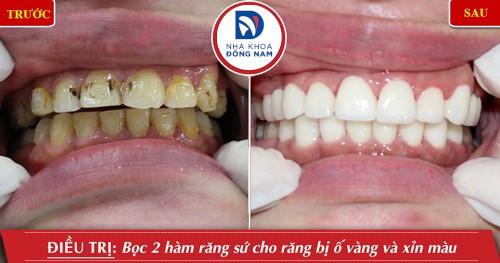 bọc 2 hàm răng sứ cho răng ố vàng