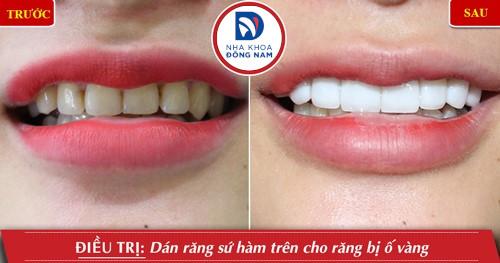dán răng sứ hàm trên