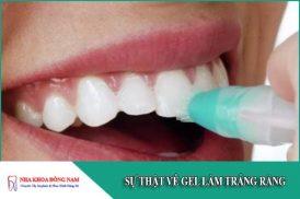Sự thật về gel làm trắng răng