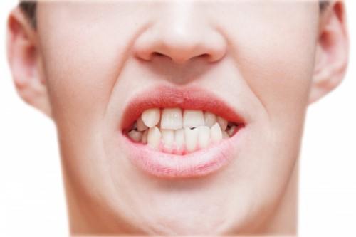 răng mọc lệch gây mất thẩm mỹ