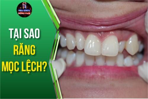 tại sao răng mọc lệch