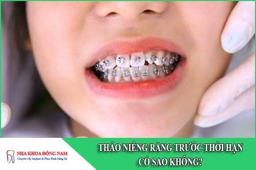 Tháo niềng răng trước thời hạn có sao không?