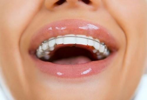 đeo hàm duy tri sau khi tháo niềng răng