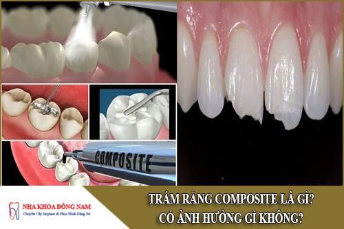 Trám răng Composite là gì? Có ảnh hưởng gì không?