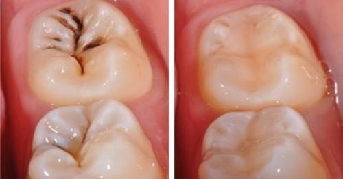 trường hợp trám răng bị sâu