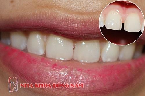 phục hình răng thưa bằng trám răng
