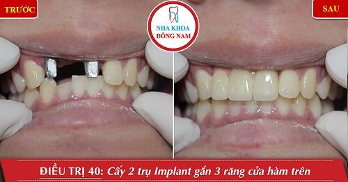 cấy 2 trụ implant răng cửa hàm trên