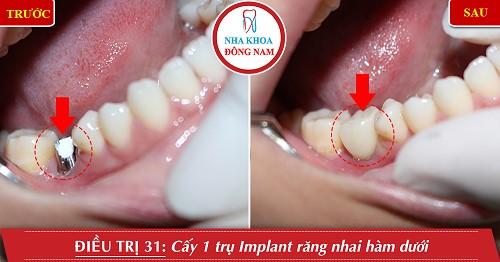 trồng 1 trụ Implant hàm dưới