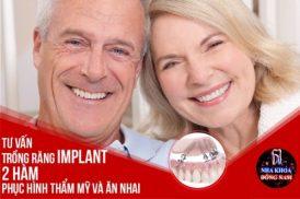 Tư vấn trồng răng Implant 2 hàm phục hình thẩm mỹ và ăn nhai