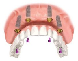 Trồng răng Implant All On 4 bao nhiêu tiền?