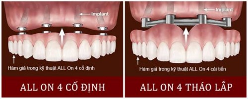implant all on 4 nha khoa đông nam