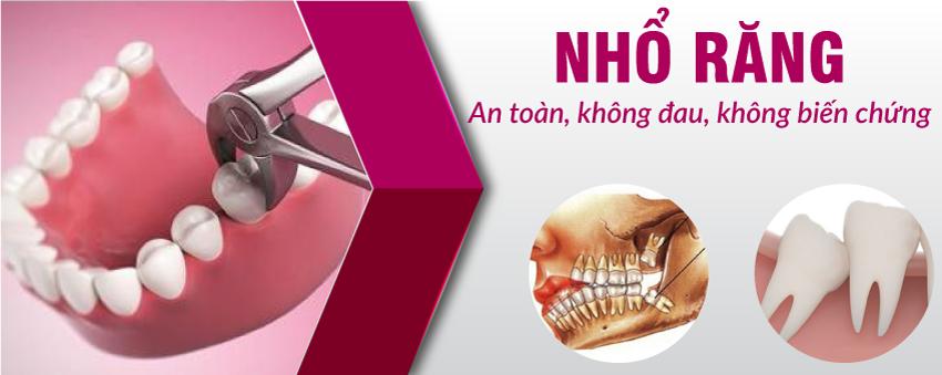 nhổ răng khôn tại nha khoa Đông Nam