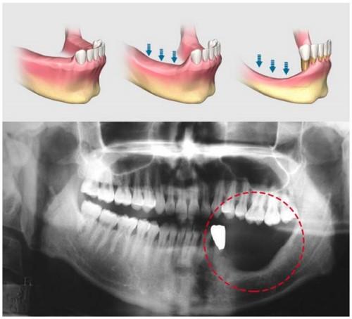 hiện tượng tiêu xương hàm