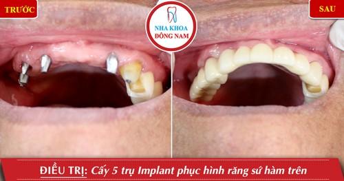 làm răng implant hàm trên